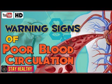 8 Warning Signs of Poor Blood Circulation