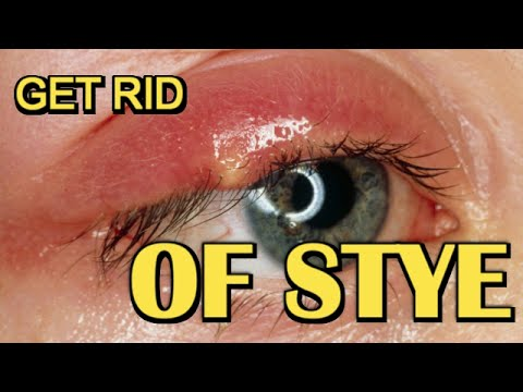Miraculous How To Pop A Stye On Your Upper Eyelid How To Solve A Problem Hairstyle Inspiration Daily Dogsangcom