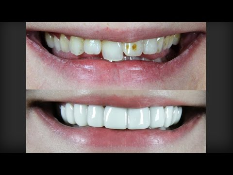 Amazing Smile Makeover - Under $1000 - Took 1 Minute - Must See