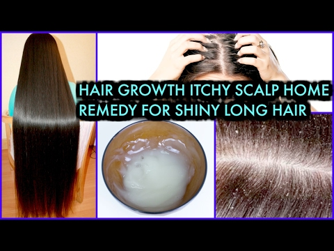 How To Grow Long Hair, treat Itchy Scalp, Get Shiny Hair | SuperPrincessjo
