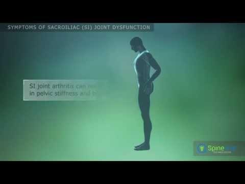 Sacroiliac joint dysfunction Symptoms