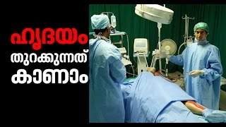 Open Heart Surgery Video | MEDex 2017 – Medical Exhibition |web special