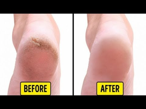 फटी एड़ियों को ठीक करने के 5 आसान घरेलु उपाय / Cracked Heels Home Remedy