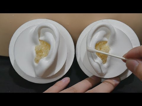 ASMR Your ears are full of earwax 7 - Pop Rocks / Popping Sound / Ear Cleaning (No Talking)
