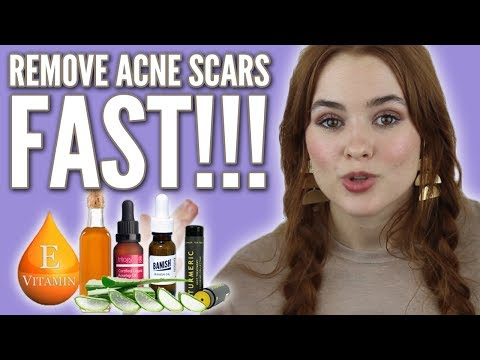 Top 5 Ways to Fade Post Acne Marks fast!
