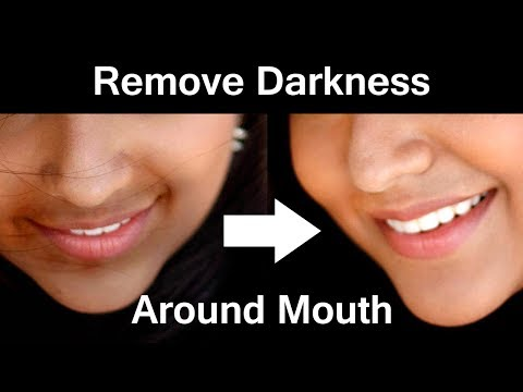 Darkness Around Mouth - Ways to remove Dark Area Around the Mouth -Tamil Beauty Tips