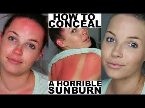 HOW TO COVER + CONCEAL AN AWKWARD FACIAL SUNBURN