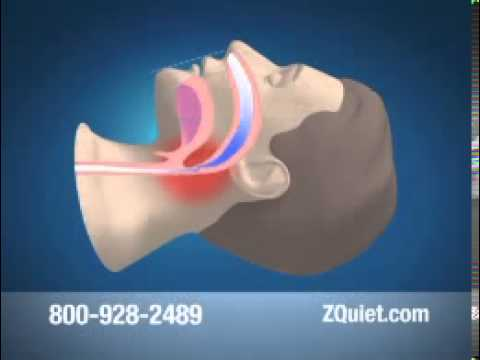 ZQuiet Mouthpiece Stop Snoring Easy Solution
