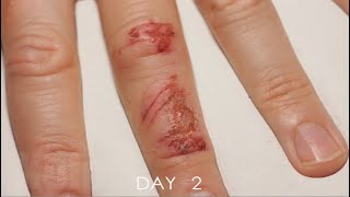 Timelapse Of A Wound Healing