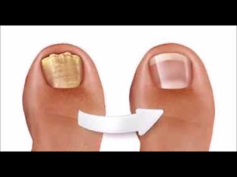 A Fast Cure For Toenail Fungus - Natural Cure For Toenail Fungus