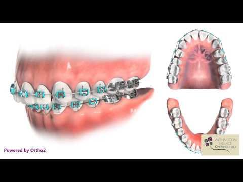 Space Closure - Multiple Views - Wellington Village Orthodontics