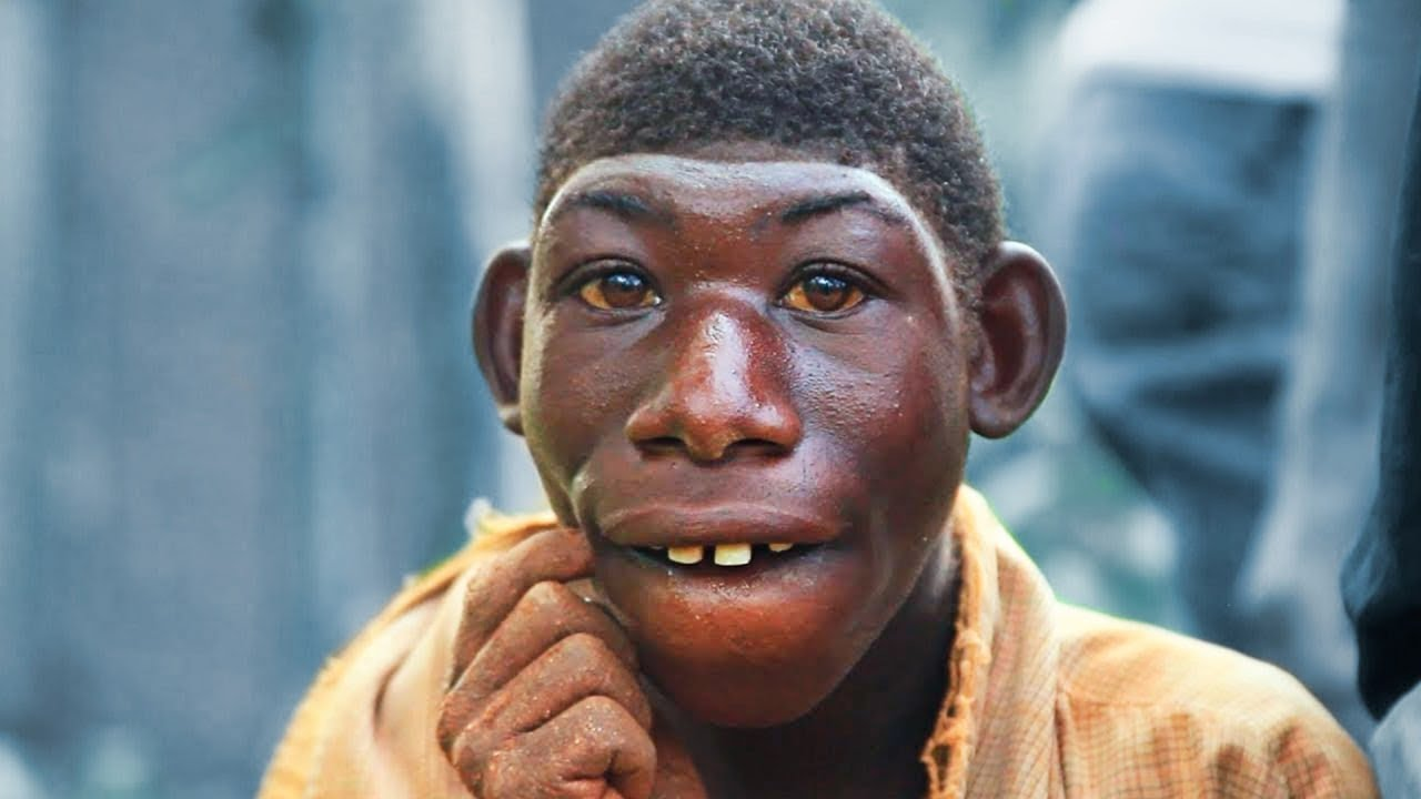 10 Rare Humans That Are One in a Million