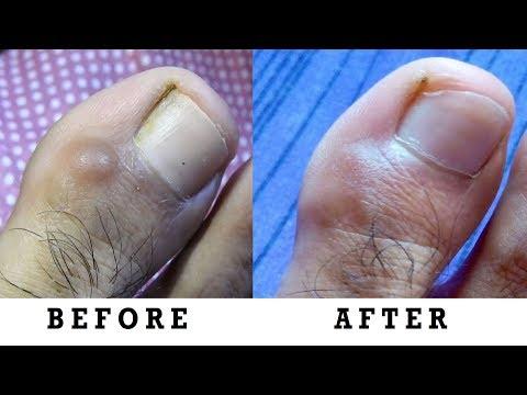 How to cure Skin Cysts, Warts & Skin Tumors - त्वचा के अल्सर, मौसा और त्वचा ट्यूमर का इलाज कैसे करें