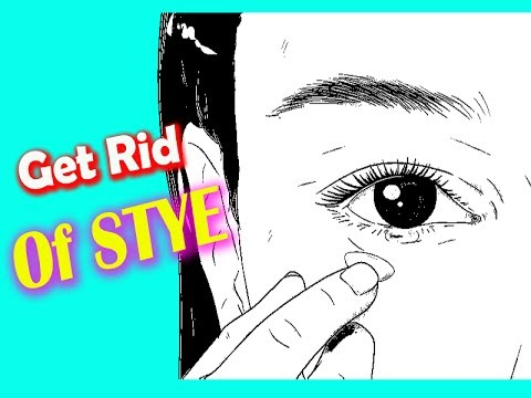 How To Get Rid Of a Stye in your eye (2 Method )