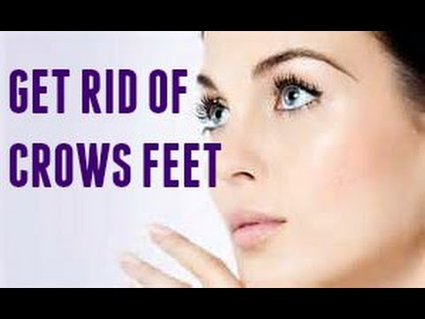 How to gett rid of those nasty CROW'S FEET