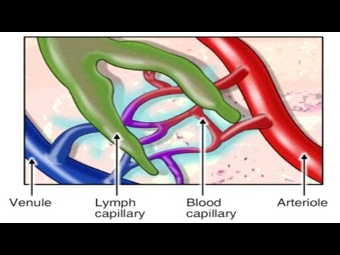 How Lymphatic System Works Animation: Spreading of Breast Cancer - Pathophysiology of Edema Video