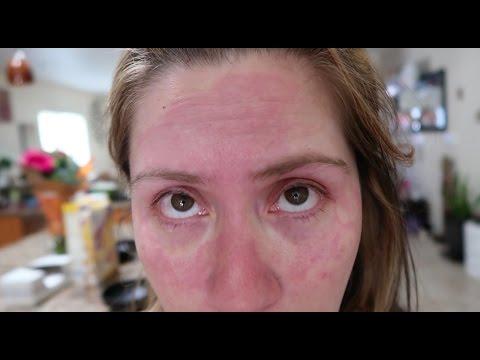 VLOG | I ruined my skin | #OMG