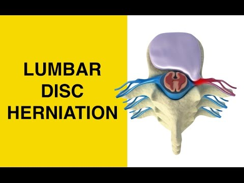 How Herniated Discs Cause Sciatica and Pinched Nerves - Bulging and Slipped Disc