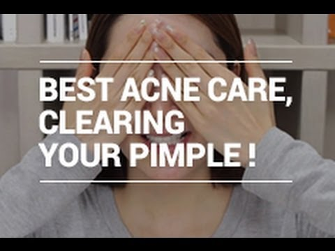 The Best ACNE Care Tips for Clearing Pimple (with Eunice's naked face! XD) | Wishtrend