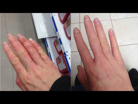 5 Tips for Healing Eczema FOREVER