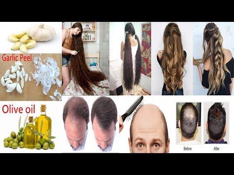 Grow Hair Faster|Stop Hair Loss| Hair Loss Treatment|Grow Hair Faster in 7 Days|Magical Growth 100%