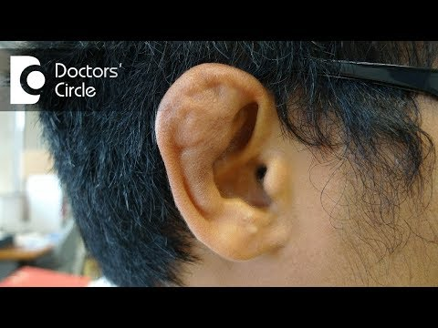 What causes Cauliflower Ear? - Dr. Gayatri S Pandit