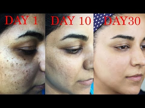 How I Got Rid of Dark Scars, Hyperpigmentation, Pimples/Acne