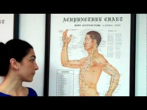 Intro to Acupuncture by a Glen Ellyn Acupuncturist
