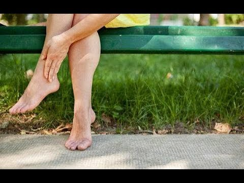 How to cure blisters naturally