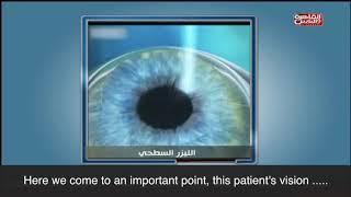 PRK  Laser Eye Surgery | DR Ashraf Soliman - Optimistic Clinic