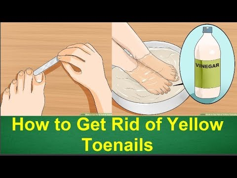 How to Get Rid of Yellow Toenails | How to Get Rid of Toenail Fungus Fast and Naturally