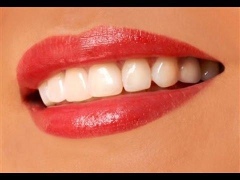 عيادة اسنان في جدة - ابتسامة هوليود - عدسات اللومينيرز- تركيبات اللافا - زراعة الاسنان الفورية