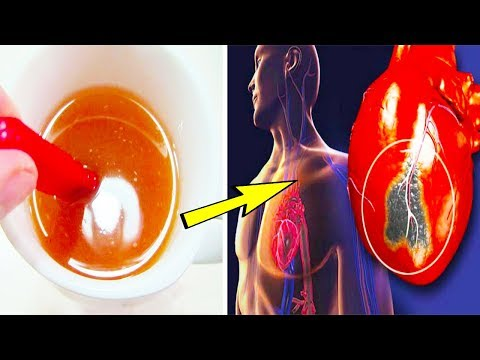 How to Stop a Heart Attack In 1 Minute - Heart Attack Symptoms I By Healthy Ways