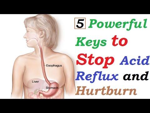 5 Powerful Keys to Stop Acid Reflux and Hurtburn