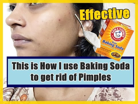 This is How I use Baking Soda to Get Rid of Pimples | Effective Treatment for Pimples & Acne - DIY