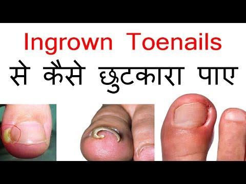 Ingrown Toenails से कैसे छुटकारा पाया जाए  || Hindi || Jabardast Nuskhe