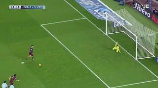 Lionel Messi Magical Performance vs Celta de Vigo ● 14/2/2016 | HD