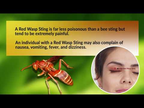10 Effective Home Remedies for Red Wasp Sting
