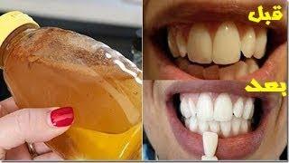 هذه هي الطريقة التي لا يريد أطباء الأسنان أن تعرفوها لتبييض الأسنان مثل الأغنياء في ثواني