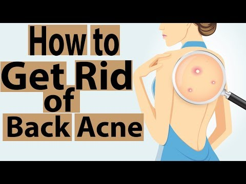 top 10 natural remedies to get rid of back acne fast