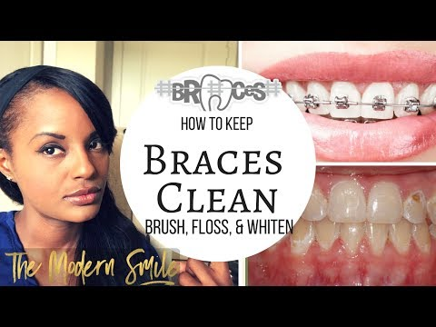 5 tips to keep your BRACES CLEAN and How to FLOSS, AND WHITEN while wearing them...