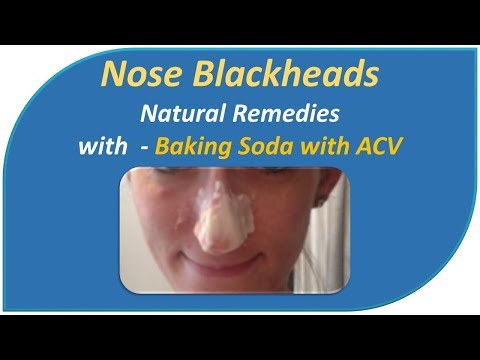 Nose Blackheads Natural Remedies with  - Baking Soda with ACV,Milk & Water