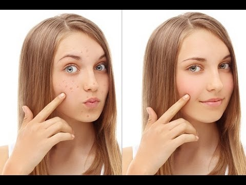 Get rid of brown spots   Remove brown spots fast