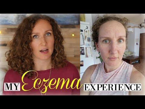 My Super Scary Eczema Experience