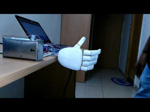 Prosthetic arm version 1.0