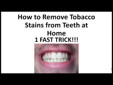 How to Remove Tobacco Stains from Teeth at Home - 1 Fast Trick!