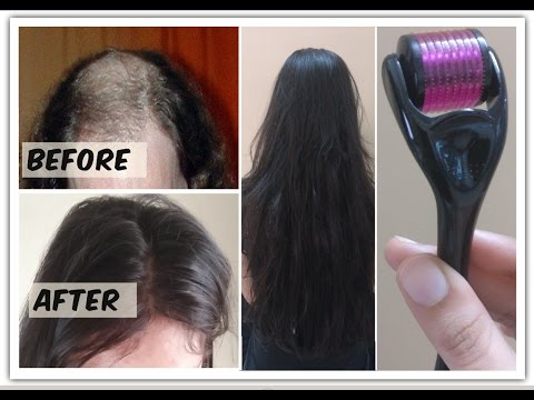 Regrow Hair from roots with Dermaroller, cures Baldness & Alopecia, gives you long hair