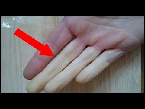 How To Solve Poor Circulation Causing Cold Hands and Feet