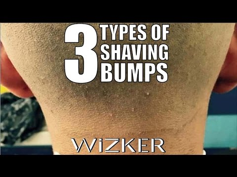 BUMPS FROM SHAVING: TYPES, CAUSES, & CURES