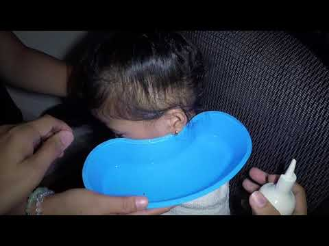 Dry Earwax Removed by Ear Irrigation in Little Girl